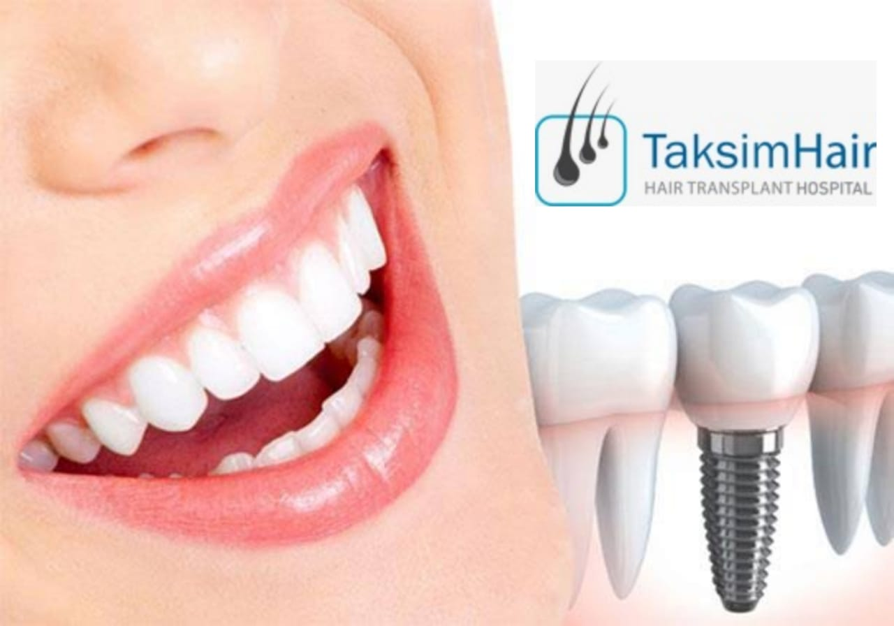 أنواع زراعة الأسنان